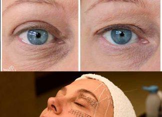 Cirugía de Párpados caídos: antes y después