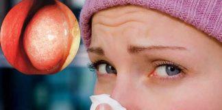 ¿Qué es el síndrome de nariz vacía y qué se puede hacer si se tiene