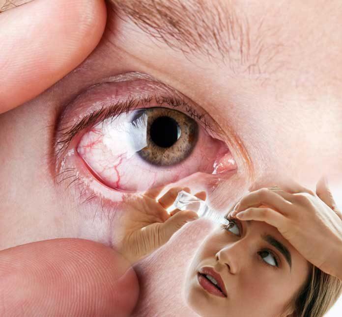 ¿Tienes ojos resecos — Es normal tener ojos resecos mira porqué