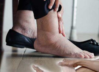 ¿Es normal? Hinchazón en los pies - Remedios y cuidados