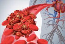 Por qué los médicos solían sangrar a sus pacientes por salud