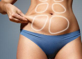 La liposucción lo que debes saber